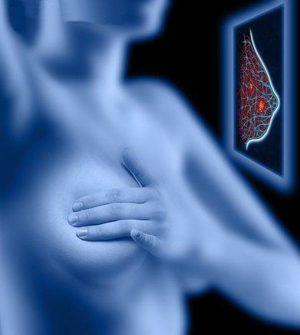 توصیه برای پیشگیری از سرطان سینه